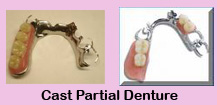 Affordable dental plans,Affordable dental plans India