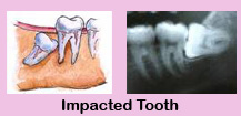 ,Cheap Dental Treatment,Cheap Dental Treatment India