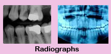 Root canal therapy,Root canal therapy India
