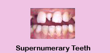 Cheap Dental Treatment,Cheap Dental Treatment India