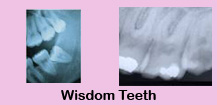 Root canal therapy,Root canal therapy India,Teeth whitening,Teeth whitening India