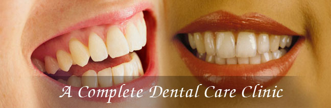 A Complete Dental Surgery, Dental Treatment, Cosmetic Filling, Dental Surgeons, RCT, Dental Implants, Dental Care, Dental Health, Teeth Whitening, Amalgam Filling, Dental Plans Provider in Smile Care