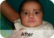 Smile care Patient After